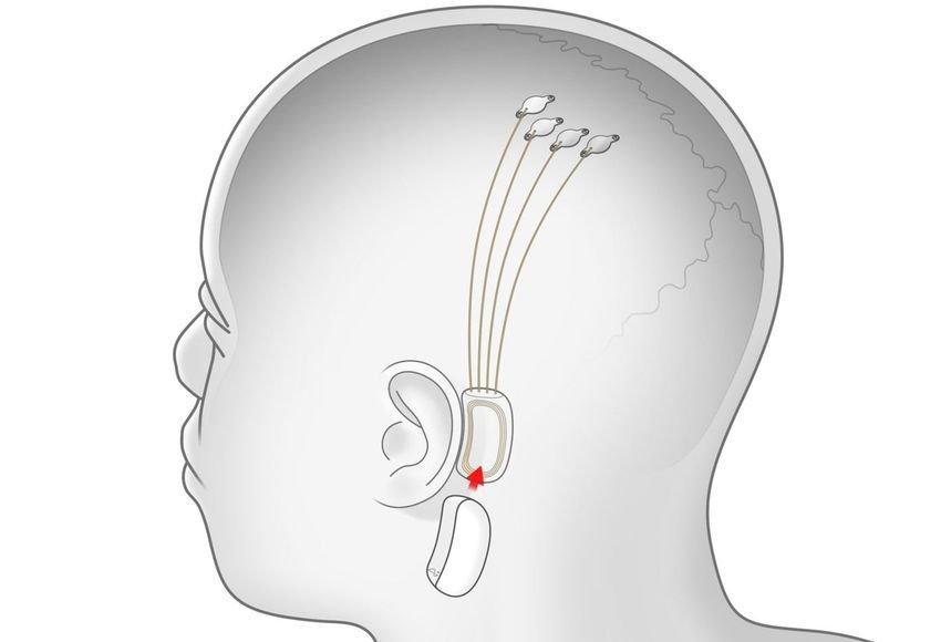 Neuralink 1 - Πειραματόζωο με συσκευή Neuralink του Elon Musk χειρίζεται με τον εγκέφαλό του ένα παιχνίδι Pong